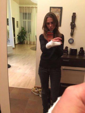 Оксана Васильева — нарушитель ПДД со сломанными пальцами