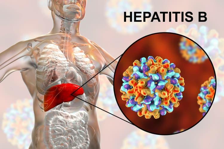 Гепатит Б: стоит ли принимать противовирусные препараты при хроническом гепатите Б?